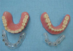 Figure 1  Upper palateless denture and lower denture with surgical stents.