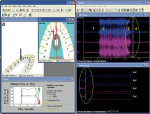 Figure 4  Posttreatment (1 hr after Figure 2A through Figure 2D) left excursion computerized occlusal analysis/EMG recording frame at muscle shutdown. Note the much shorter time distance between the numbers 3 and 4 postoperatively (top right panel).