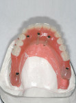 Figure 15   Occlusal view of the prefabricated all-acrylic resin provisional prosthesis connected to the standard-length implants.