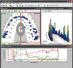 Figure 2 Digital diagnostic technologies measured and visually displayed the areas of improper dental forces that required attention.