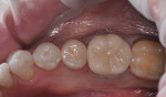 Figure 17 The restoration turned a natural tooth color, and was placed into the patient's mouth with a fourth-generation bonding agent and resin cement.