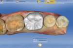 Figure 9 The restoration proposed by CEREC SW 4.0.