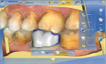 Figure 8 Images taken from the buccal area.