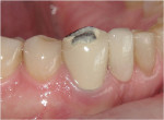 Figure 1 Fractured porcelain off the incisal third of tooth No. 27.