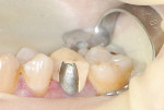 Figure 6 Photograph of the fractured facial porcelain off tooth No. 4.