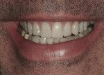 Figure 10 View of the maxillary provisionals in a natural smile.