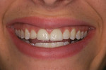 Figure 7  Case 3 pre-treatment photograph of patient's smile.