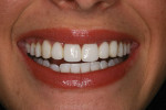 Figure 9 Case 3 post-treatment photograph of patient's smile.