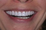 Figure 21 Case 7 close-up imaged smile.