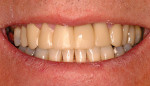 Figure 5 Photograph of the temporaries from the dentist's wax-up.