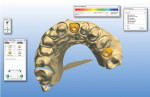 Figure 8 A proposal of the custom zirconia abutments.