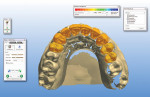Figure 11 A 3D proposal of the final restorations.
