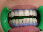 Fugure 5 Resin barrier applied to maxillary and mandibular arches.