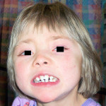 Figure 1  Facial characteristics of children with Kabuki syndrome.