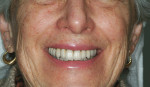 "Figure 2  This patient""s smile view showed complete fixed upper porcelain-fused-to-metal (PFM) dental restorations with DM approximately centered to Cupid""s Bow. The full-face smile view revealed a significant discrepancy between DM and FM."
