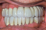 Figure 7  New complete upper and lower fixed composite-fused-to-gold dental restorations for this patient with DH in harmony with FH.
