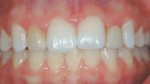 Figure 9&ensp; This patient sought treatment for color correction of her maxillary lateral incisors. The right lateral incisor was a porcelain veneer and the left one was the pontic of an all-ceramic, resin-bonded bridge, which</span> had debonded on nume