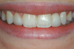 Figure 15  The completed smile for this patient.