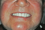 Figure 17  This patient displayed lower lip asymmetry. The recommendation of Check Point 5 is to follow the FH in such a situation, as presented here. A dental composition that follows a symmetrical lower lip contour can be seen again in Figure 15.