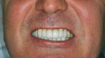 Figure 19  The final tooth and dental implant-supported maxillary fixed prosthesis achieved a more convex incisal edge line. Corrections of DM to FM, DV to FV, and DH to FH also were achieved and the maxillary central incisors were centered in the fa