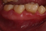 Figure 5  Retained primary dentition is common among those with T21 as seen here.