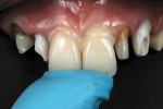 Figure 13  Cementation using a self-cure composite resin cement.