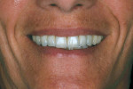 Figure 17  The final esthetic result.