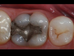 Figure 1  Preexisting clinical condition of a mandibular molar to be restored.