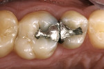Figure 1  Preoperative clinical condition of tooth No. 3 with recurrent caries under the mesiofacial cusp.