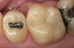 Figure 7  Baseline evaluation of tooth No. 3 with a Paradigm MZ100 composite chairside CAD/CAM inlay.
