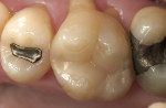 Figure 9  Six-year evaluation of the Paradigm MZ100 inlay on tooth No. 3.