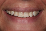 Figure  2  Initial full smile.