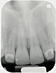 Figure  3  Initial upper anterior radiograph taken in 2008.
