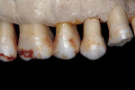 Figure  17  Fenestrations without gingival recession.