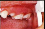 Figure  4  Marked erythema on distobuccal gingiva of maxillary left second primary molar (buccal view).