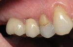 Figure  8  Right molar 1 year after implant placement reveals good gingival contour and esthetics.