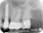 Figure  26  The 8-month post-loading radiograph.