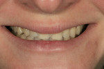 Figure 10  Preoperative view of the patient's natural smile.