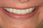 Figure 19  Close-up smile. Note the golden rule of proportion was applied to the restoration design.