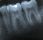 Figure 19  Localized apical idiopathic external resorption. Radiograph of lower left first molar in 2003 (Fig 18). Radiograph of lower left first molar in 2005 (Fig 19). Note replacement of distal apical root with normal-appearing bone (PARR without
