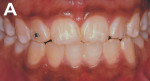 Figure 1   A 17-year-old girl with white enamel stain of hard texture, located just on dental enamel in the superior and inferior teeth.