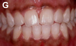 Figure 7  After enamel microabrasion and dental bleaching.