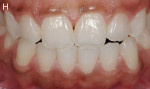 Figure 8  Three years after enamel microabrasion and dental bleaching.