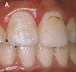 Figure 9: A 16 year-old girl with white enamel stain of hard texture, color alterations, and surface irregularities on the buccal aspect of the maxillary right central incisor, and a composite resin restoration on the buccal aspect of the maxillary left c