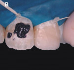 Figure 10  Immediately after application of a fine-tapered diamond bur No. 3195 FF and during the application of enamel microabrasive Opalustre for 1 minute, in each application of compound.