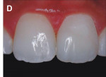 Figure 12  Immediately after enamel microabrasion, dental bleaching, and the restoration using bonding system with composite resin Opallis.