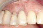 Figure 11  One-year follow-up of final restoration shows maintenance of papillae and facial gingival form. This is significant considering the thin scalloped nature of the gingival tissue.