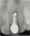 Figure 13  Periapical pathology on tooth No. 9.