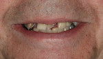 Figure 1  Low lip line smile at presentation.