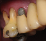 Figure 2  Class V amalgam restoration on tooth No. 4 associated with plaque-induced gingivitis in a patient with poor oral hygiene.